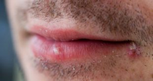 Coping with cantankerous canker sores